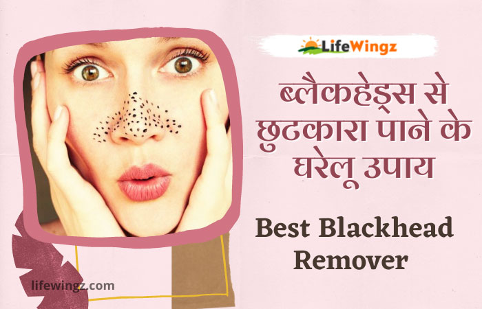 8 best home remedies for blackheads removal