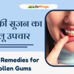 Home remedy swollen gums